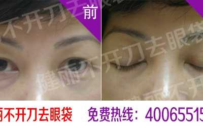 郑州去眼袋最好医院 郑州去眼袋医院到哪里去好
