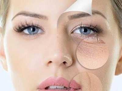 眼睛有黑眼圈怎么消除 有黑眼圈和眼袋怎么办